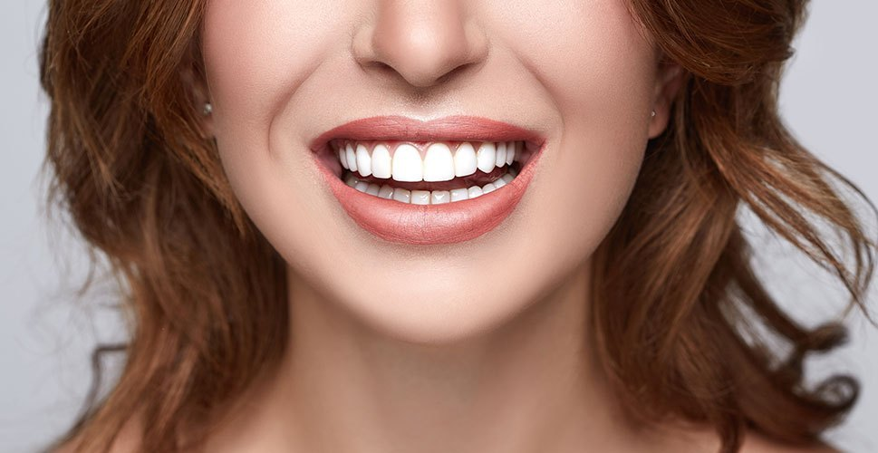 HOW VENEERS CAN IMPROVE YOUR SMILE